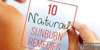 10 Easy At-Home Sunburn Remedies